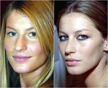 fotos de rinoplastia antes de depois