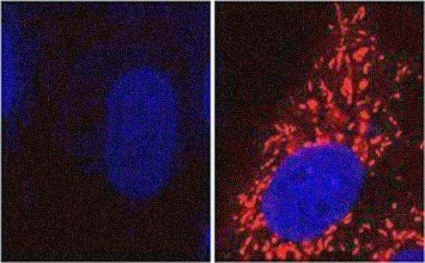 Base potencial para un nuevo tratamiento contra la enfermedad de Parkinson