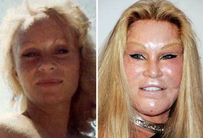 "To please her husband, Jocelyn Wildenstein has undergone more than $4 million dollars worth of plastic surgeries. Her husband wanted her to get the look of a feline, and she has succeeded in doing just that. People often refer to Wilderstein as ""The Cat Lady."""
