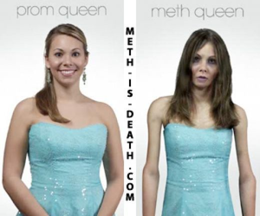 before and after meth pictures | meth users before and after image search results