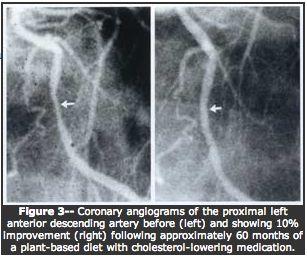 Resolving the Coronary Artery Disease Epidemic through Plant-Based Nutrition | Dr. Esselstyn's Prevent & Reverse Heart Disease Program