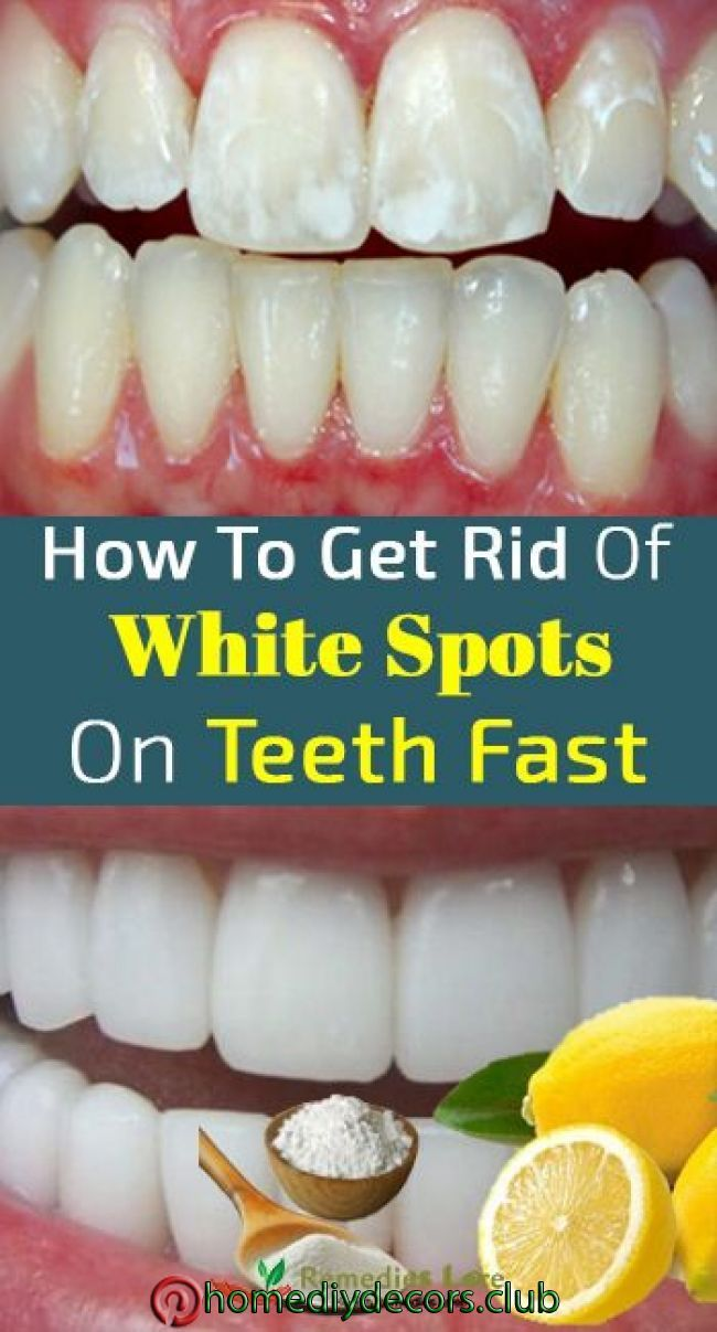60a9d5afc10ec1cd9222bb34c3627001 - How To Get Rid Of White Spot Lesions On Teeth