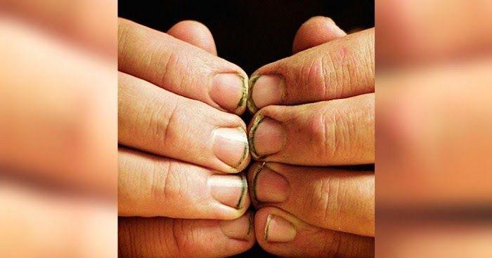 8 Σημεία στο ανθρώπινο σώμα που οι γιατροί απαγορεύουν να αγγίζουμε. Δείτε ΓΙΑΤΙ είναι επικίνδυνο για την υγεία μας!