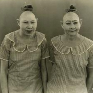 """Jenny Lee and Elvira Snow, also known as """"The Snow Twins"""", suffered from microcephaly, characterised by abnormally small craniums which gave rise at the time to the term """"pinhead"""". Like most microcephaly sufferers Zip and Pip were mentally retarded, but although based at Coney Island, they also travelled with the World Circus Sideshow for many years."""