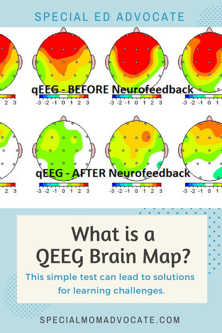 What is a QEEG in Map? | Special Needs Mom Blogs | in mapping ... Qeeg In Mapping on