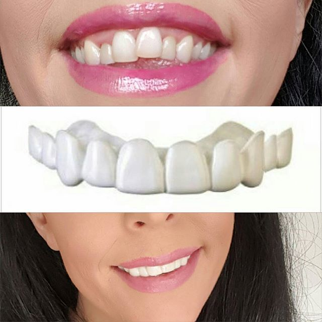 We love giving people the confidence to smile again!