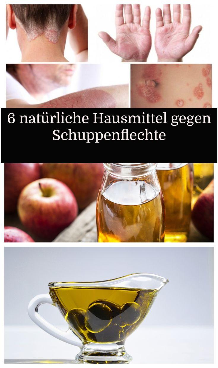 6 natürliche Hausmittel gegen Schuppenflechte