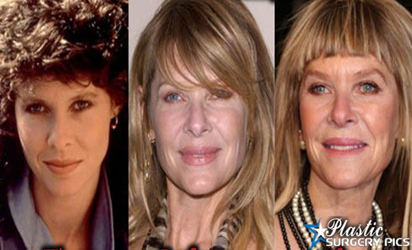 Kate Capshaw Plastic Surgery Before After Pictures