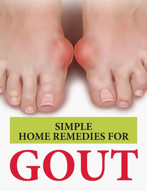 pseudo gout symptoms and treatment over the counter supplements for gout