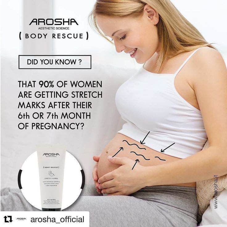 Stretch marks happen when your body grows faster than your skin can keep up with. This causes the elastic fibers just under the surface of the skin to break resulting in stretch marks. Especially on your belly and breasts two areas that grow the most. Stretch marks can also show up on the thighs buttocks and upper arms. Specially developed AROSHA BODY RESCUE Stretch mark cream is an intense treatment to stimulate cell regeneration and connective tissue restructuring in order to improve skin…