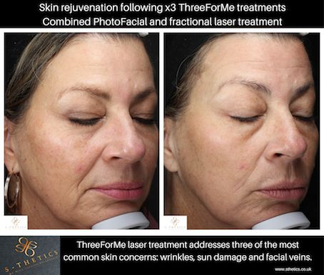 laser-skin-rejuvenation-treatment-before-and-after-S-Thetics-clinic