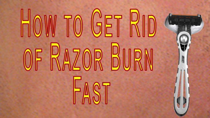 How to Get Rid of #Razor #Burn #Fast | how to treat razor burn