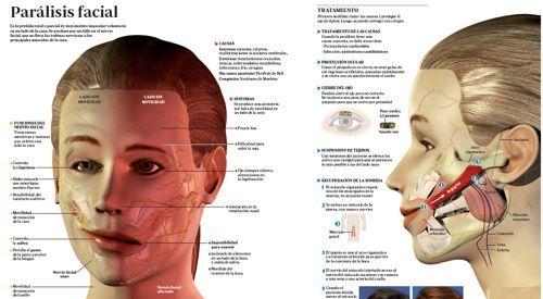 Es la pérdida total o parcial de movimiento muscular voluntario en un  lado de la cara. Se produce por un fallo en el nervio facial, que no  lleva las órdenes nerviosas a los principales músculos de la cara. Una parálisis facial puede recuperarse espontáneamente en algunos casos  sobre todo cuando son parálisis secundarias a la exposición del frío o  las idiopáticas (parálisis de Bell). Generalmente es necesario un tiempo  prudencial de espera (6 meses) para determinar la recuperación del…
