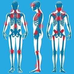 Fibromyalgia Symptoms These are some of the pressure points that can hurt all of the time, but the pain is not limited to these places - not at all. Brenda Dunlap