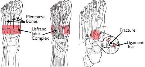 Lisfranc (Midfoot) Injury-OrthoInfo - AAOS