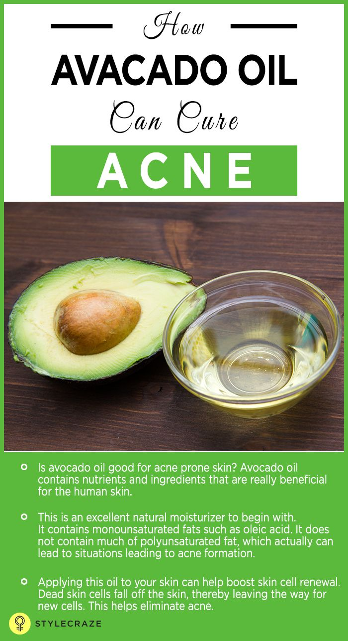 Is acne robbing off your peace of mind? Have you been using various OTC medications only to be left disappointed with no results? Then you probably must look for avocado oil, which has amazing properties that can help treat acne. Are you curious to know more? Keep reading this post! #Acne