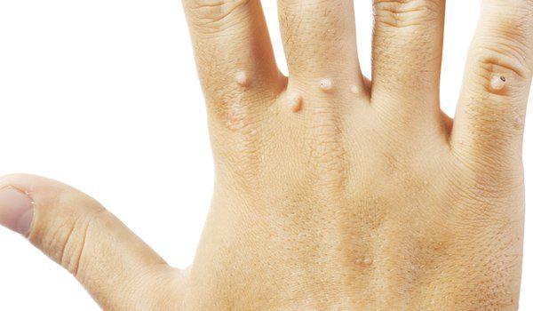 Brodawki (kurzajki) – niezliczone sposoby naturalnego leczenia