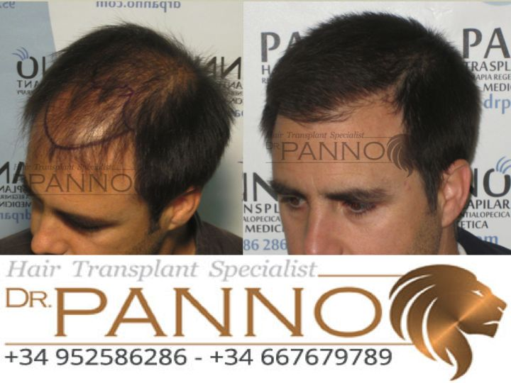 Dr. Panno Pionero en tecnica #FUE de trasplante capilar es lider en maxima #densidad y naturalidad experto en trasplante de pelo sin cicatriz y sin dolor