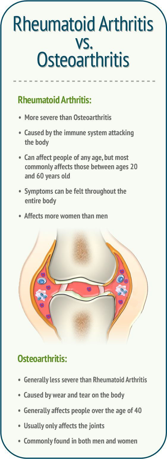 Rheumatoid Arthritis vs. Osteoarthritis