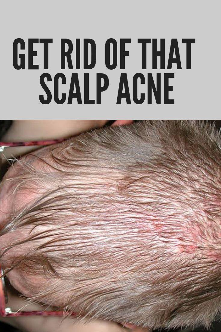 60be216ae08497a9bcafecf5d7632f2f - How To Get Rid Of Red Spots On Scalp