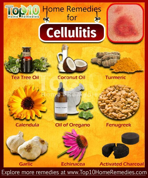 Get rid of Cellulitis using these natural home remedies. Moisten a cotton swab with water and put one or two drops of tea tree essential oil on it. Dab it on the site of the infection. Leave it on for a few hours before washing it off. #Home #Remedies #Cellulitis