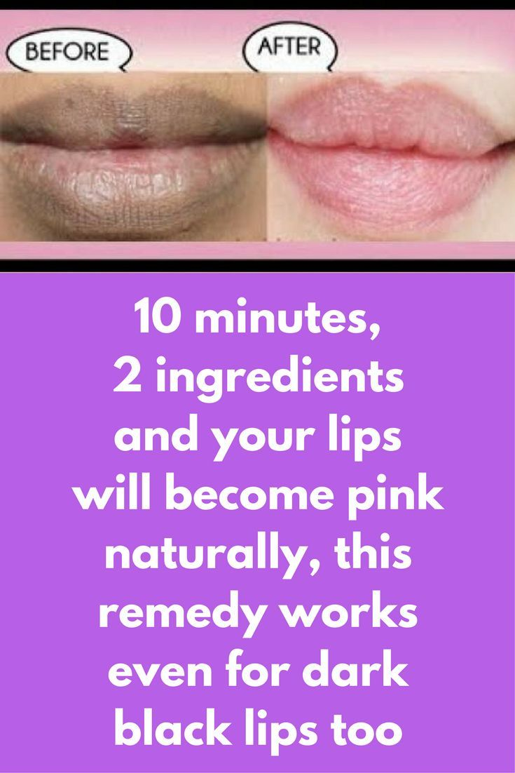 10 minutes, 2 ingredients and your lips will become pink naturally, this remedy works even for dark black lips too Getting natural pink lips is a dream of every one and today in this pot I am going to share one miracle remedy that cann actually help you in achieving this For this remedy you will need just 2 ingredients The first ingredient is turmeric powder, you will need 1/2 tsp of turmeric powder. Now …