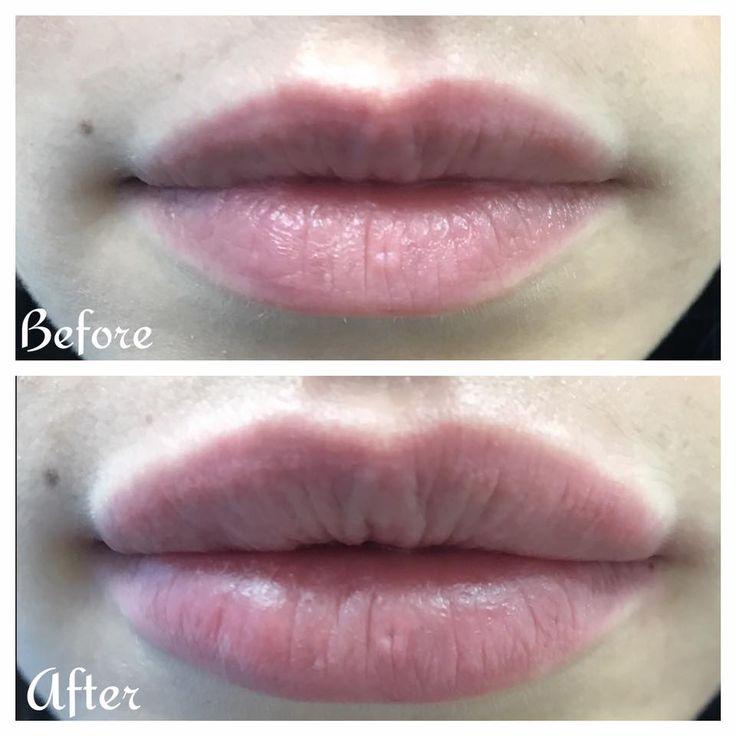 Home in 2020 facial fillers botox fillers lip plumper