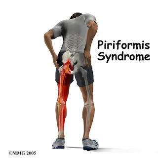 Is your sciatica due to a tight piriformis muscle? Stretch it out with these moves