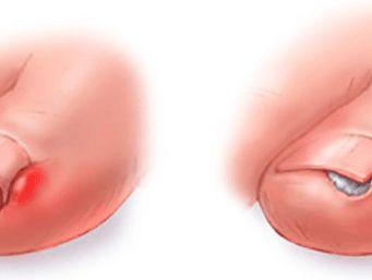 Máte zarostlé nehty na nohou? Zde je několik osvědčených domácích receptů, jak se jich zbavíte
