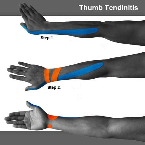 de quervain's kinesio taping -  with band aid over radial styloid