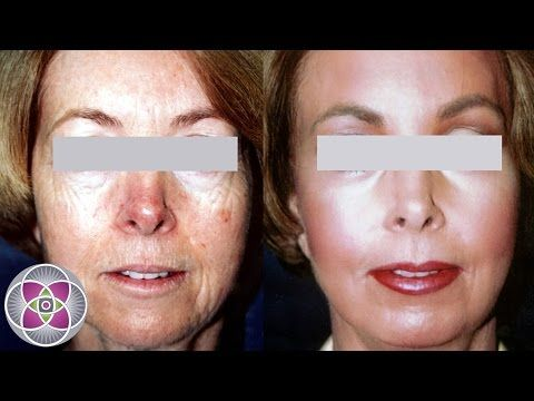 SpectraLift Non Surgical Laser Facelift Before and After - YouTube