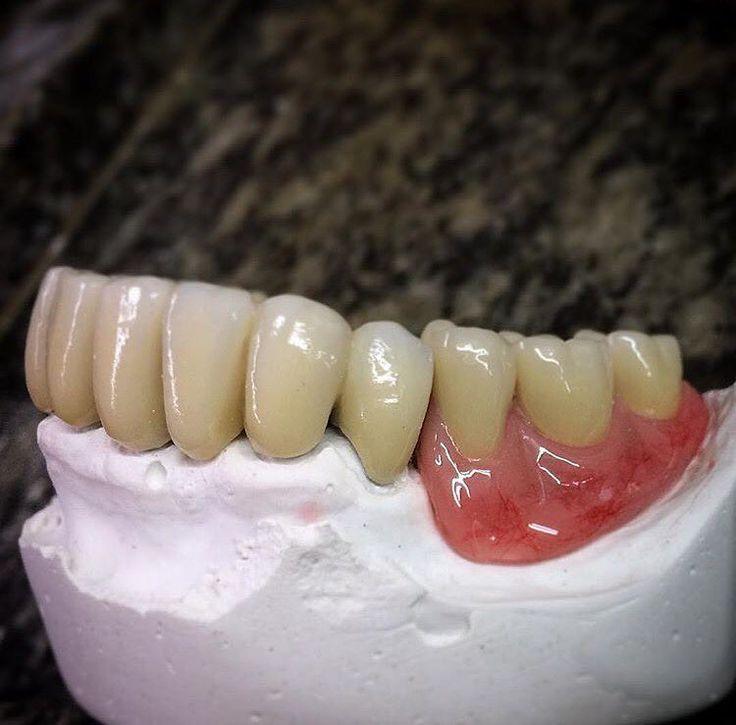 #dentistry #dentistrylife #dentalassistant #prosthetics #porcelain #zircon #orthodontistfacts#prosthetics#implants#braces#teethbraces#teeth#gold#silver#ceramic#lingualbraces#invisalignbraces#invisalign#dental#dentistry#advice#care#clean#oralcare#brush#avoidsugaryfoods#floss#fluoridated#dentistrylife#medlife#doctor
