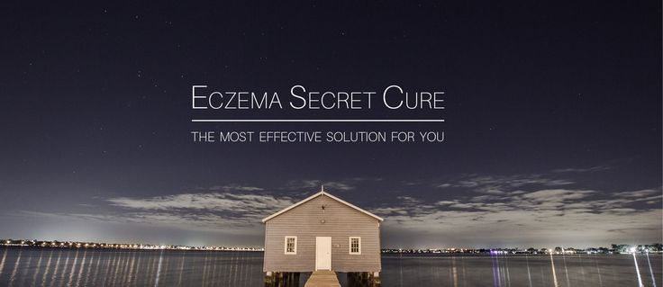 Eczema Secret Cure is the best product on the market today. Did you know that over 1000 adults and 50 children have used Eczema Secret Cure and it has worked in every single case?