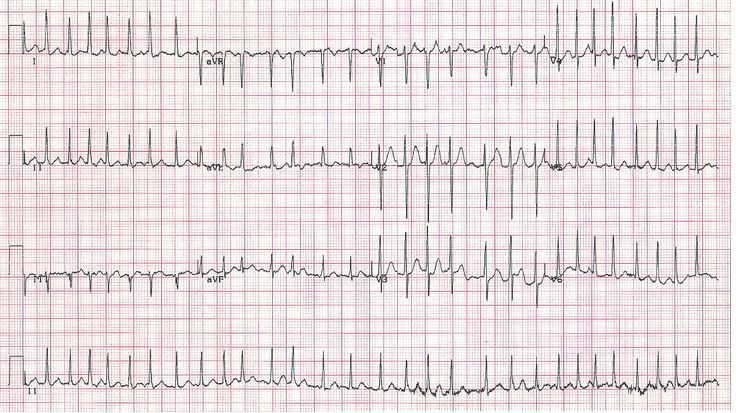 How to Manage Patients with Atrial Fibrillation and Prior Intracranial Hemorrhage