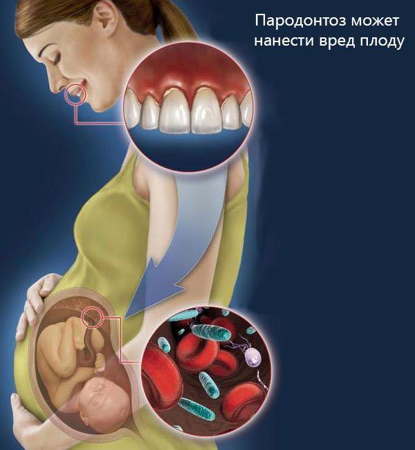 Пародонтоз сопровождается покраснением, однако, может развиваться и у беременных. Последствием этого могут быть преждевременные роды и/или низкий вес при рождении.  В большинстве случаев такую боль женщина легко переносит, препараты фтора и настои трав (ромашка, эвкалипт).