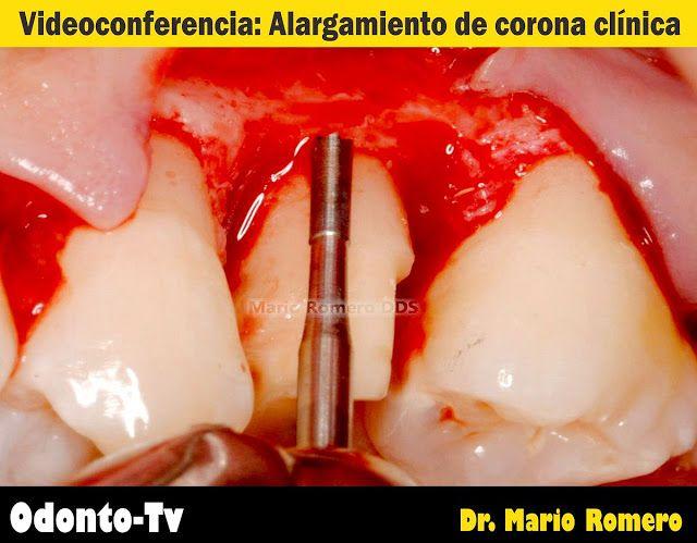 REHABILITACIÓN ORAL: Alargamiento de Corona Clínica - Videoconferencia del Dr. Mario Romero (Video 1) | Odonto-Tv