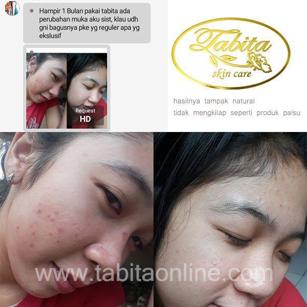 Before After Tabita Skin Care, Jerawat hilang, kulit menjadi lebih bersih, halus, dan cerah merona.