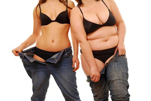 MGB is low risk, has excellent long term weight loss, minimal pain and can be easily reversed or revised. Find details: http://www.obesityinindia.in/mini-gastric-bypass.php  #MiniGastricBypass #weightlosssurgery