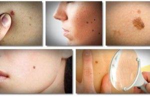 Prírodné liečivá na bradavice, kožné prívesky, vyrážky, škvrny a materské znamienka