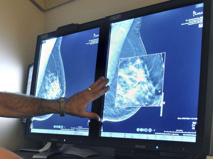#Cancer du sein : le taux de mortalité diminue aux Etats-Unis - Sciences et Avenir: Sciences et Avenir Cancer du sein : le taux de…
