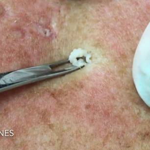 This Doctor Shares Her Amazing Blackhead Extractions On Instagram