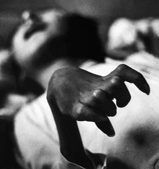Iwazo Funaba's crippled hand, a victim of the Minamata disease, 1971 by W. Eugene Smith