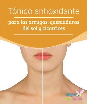 Tónico #antioxidante para las #arrugas, #quemaduras del sol y #cicatrices  Este tónico antioxidante es un producto de origen natural que se elabora con ingredientes ricos en nutrientes para mejorar la calidad de la piel ¡Prepáralo! #Belleza