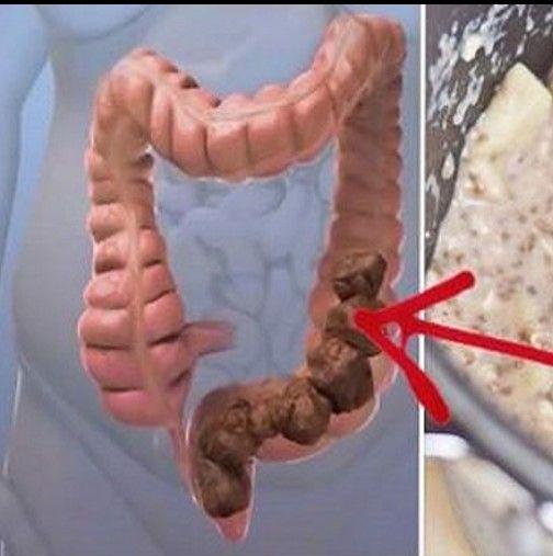 Лекарите нямат обяснение: домашно приготвена смес, която почисти дебелото ми черво от токсичните отпадъци! Даже кожата ми засия!