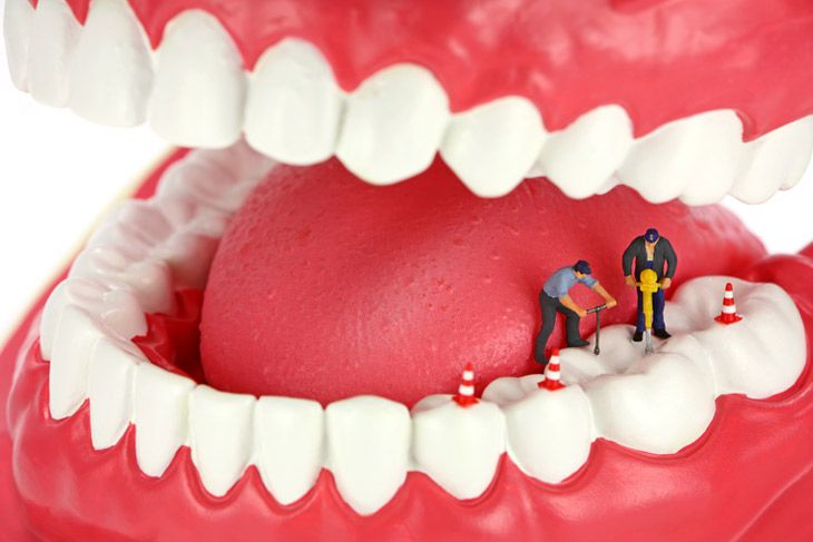 tratamiento endodoncia clínica plaza américa