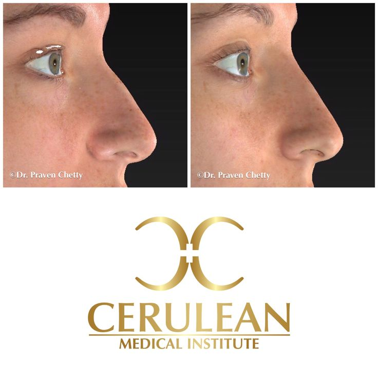 Non-surgical rhinoplasty by Dr. Praven Chetty at Cerulean Medical Institute illustrating alignment of the nasal bridge and reduction of the nasal bump with fillers✨👃✨ #nonsurgicalrhinoplasty #nonsurgicalnosejob  #beforeandafter #nosefiller #nosecontouring #fillerinjections #Juvederm #byebyehump #loveyournose #CeruleanMedicalInstitute #DrPravenChetty #Cosmetic #Dermatology #Advanced #SkinCare #Beautiful #Kelowna #Okanagan