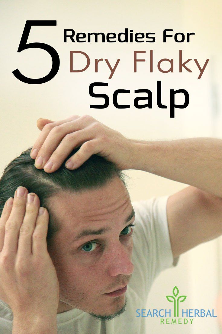 5-remedies-for-dry-flaky-scalp