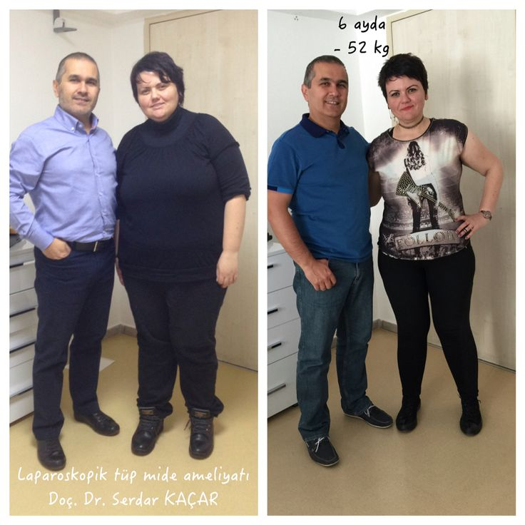 #Abnehmen #Fettleibigkeit #Ubergewicht #Adipositas #AdipositasChirurgie #metabolicChirurgie #Magenverkleinerung #MagenBypass #gewichtsverlust #verwandlung #MetabolischesSyndrom #schlauchmagen #tüpmideameliyatı #obezite #obesity #weightlosssurgery #obezitecerrahisi #obesitysurgery #tüpmide #bariatricsurgery #bariatrikcerrahi #sleevegastrectomy #sleevegastrektomi #gastrikbypass #gastricbypass #metabolikcerrahi #metabolicsurgery #drserdarkacar