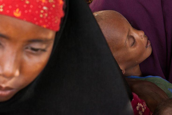 Mahad, Age 2 | Dadaab Refugee Camp