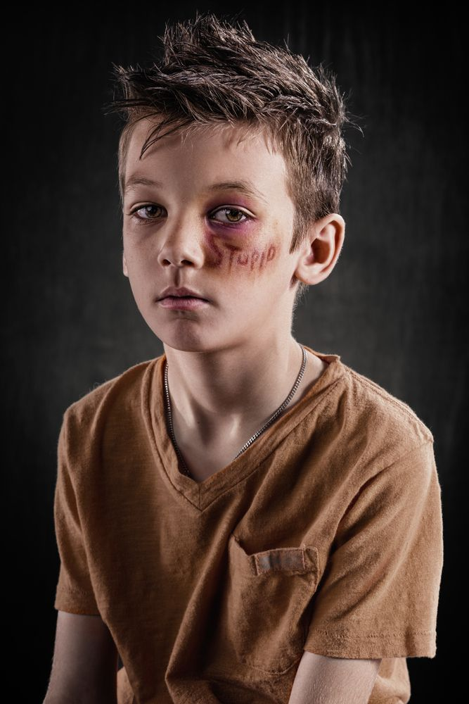 Powerful Images Show A World Where Verbal Abuse Leaves Physical Scars (GRAPHIC)